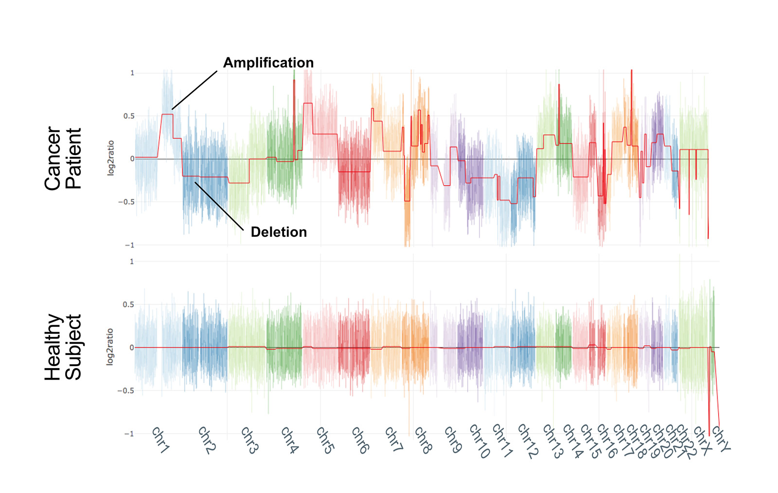 Whole genome CNV profiles of research samples from cancer patients and healthy individuals