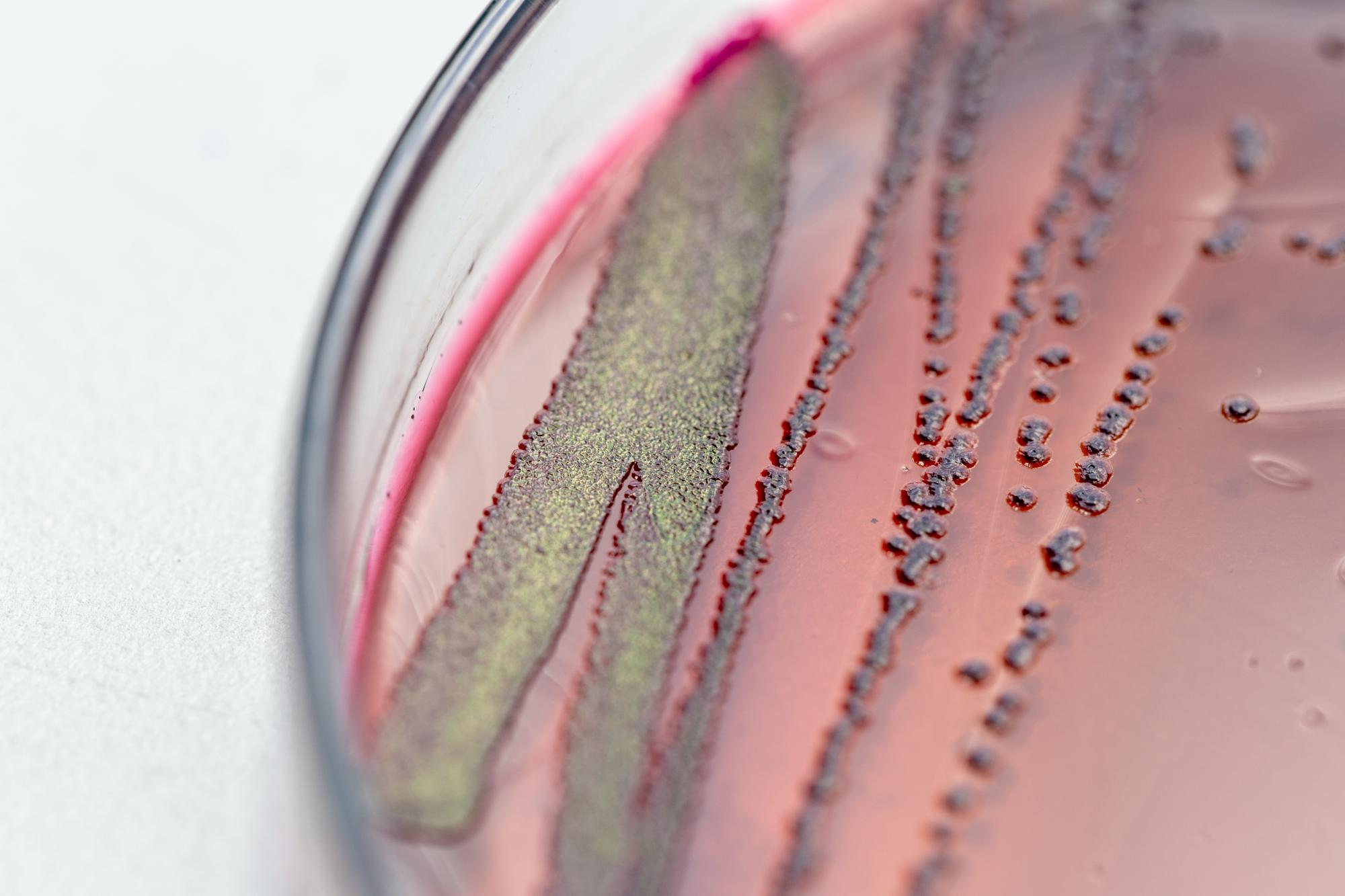 Close-up of petri dish containing bacterial colonies growing on pink agar